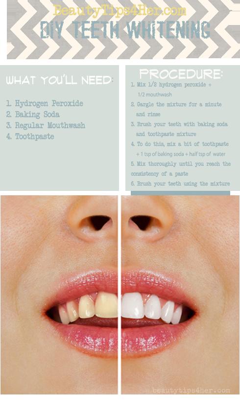 Homemade Teeth Whitening.