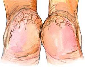 Get Rid of Dry, Cracked Heels